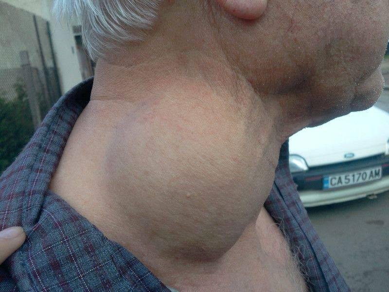 Киста левой доли щитовидной железы