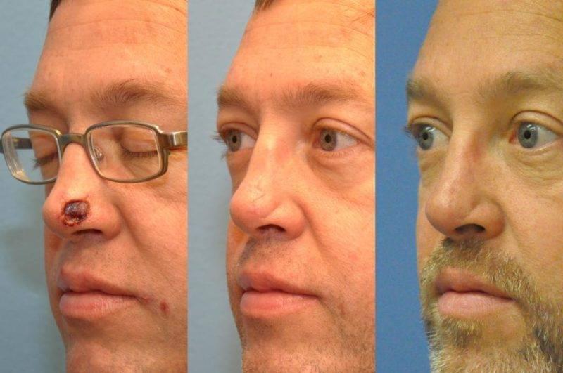Рак носа – симптомы