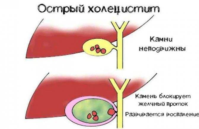 холецистит у детей симптомы