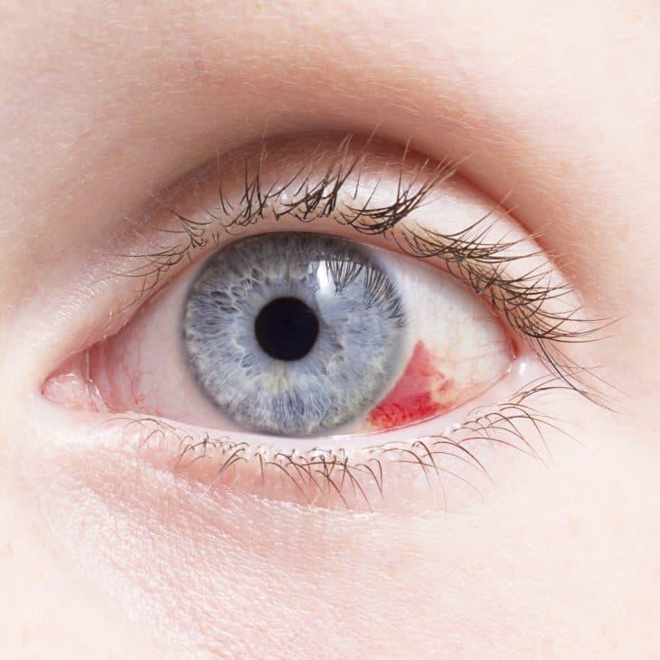 Красное пятно в глазу у ребенка