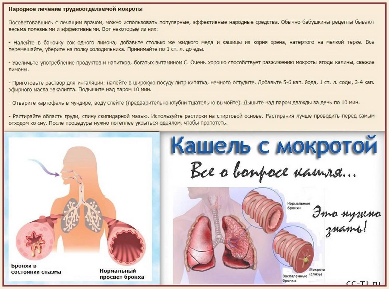 лечение кашля с мокротой
