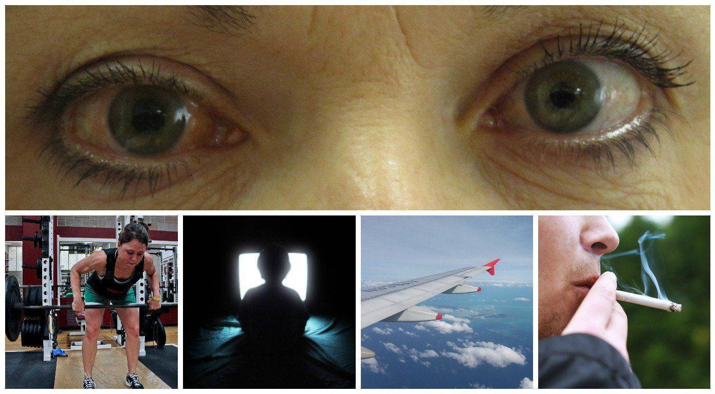 противопоказания при глаукоме глаза