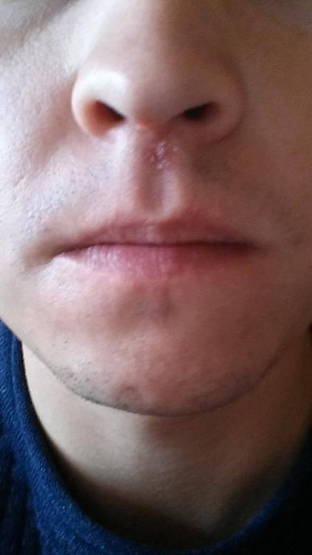 герпес на носу у ребенка лечение