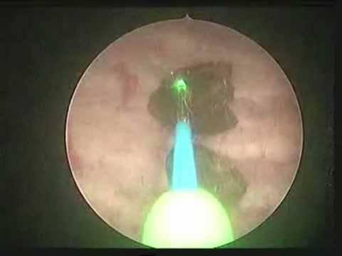 Удаление камней из желчного пузыря без удаления органа