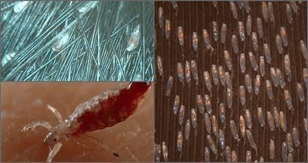 Как размножаются вши на голове у человека