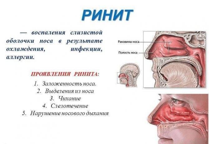 Воспаление слизистой оболочки в носу