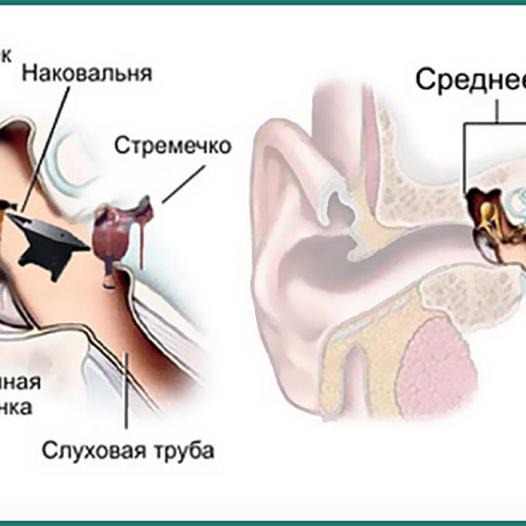 заболевания среднего уха