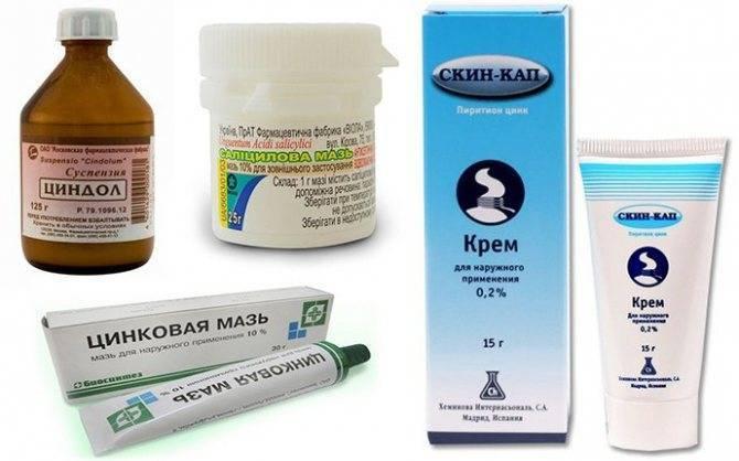 мази от себорейного дерматита на голове