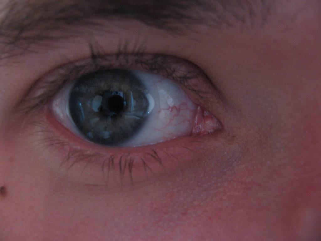 у грудничка лопнул капилляр в глазу