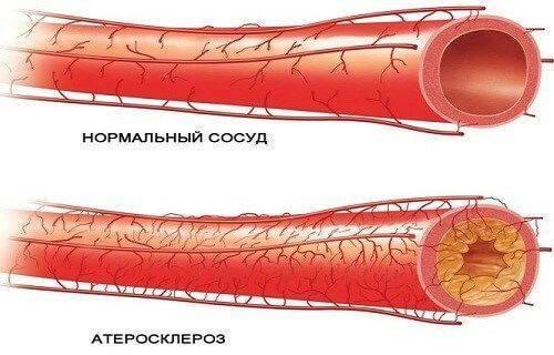 Симптомы атеросклероза. способы лечения атеросклероза