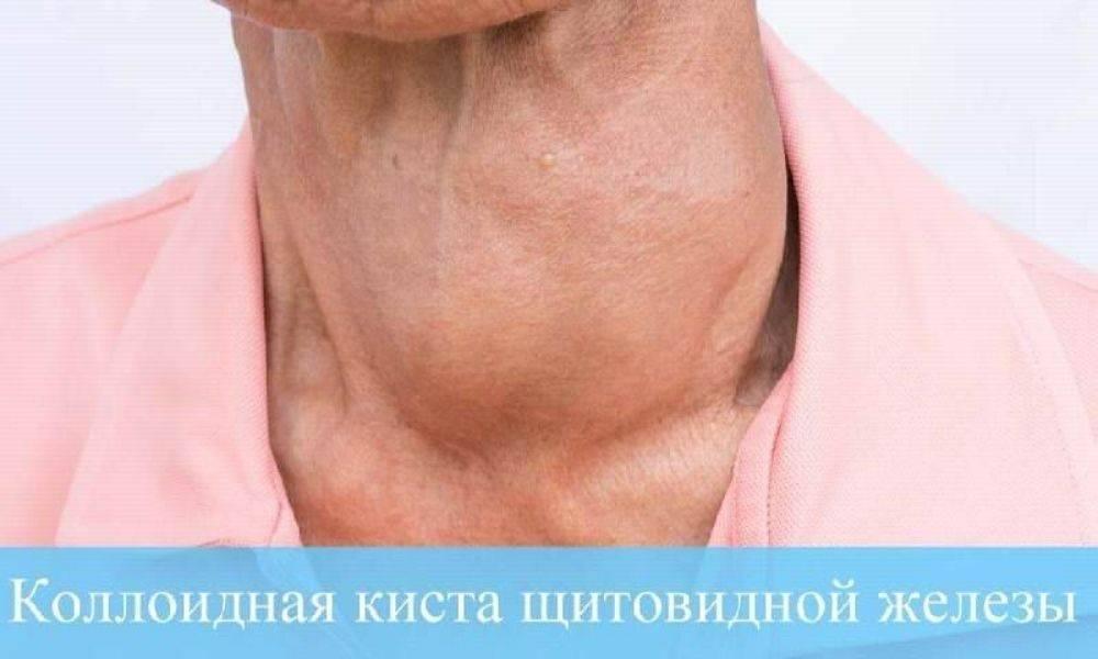 коллоидная киста щитовидки