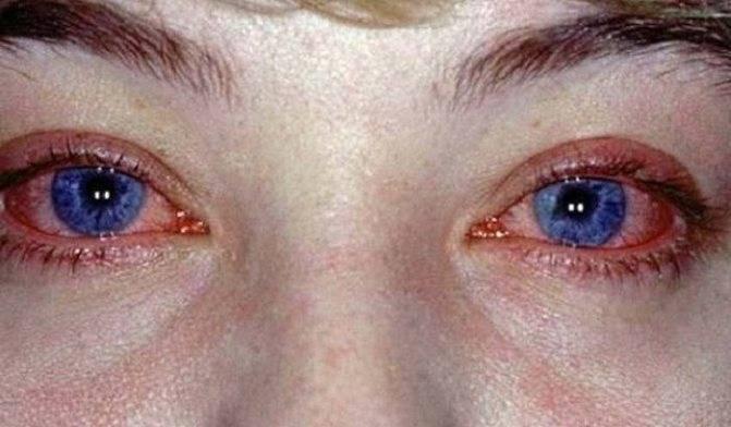 Коньюктивит! - лечение коньюктивита при беременности - запись пользователя tatag (id934599) в сообществе здоровье будущей мамы и малыша в категории зрение - babyblog.ru
