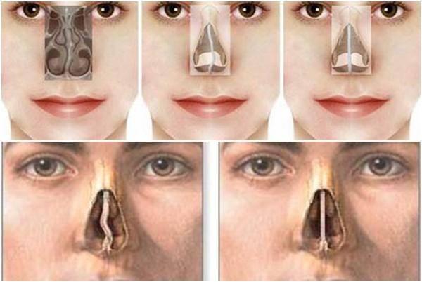 как выпрямить нос без операции
