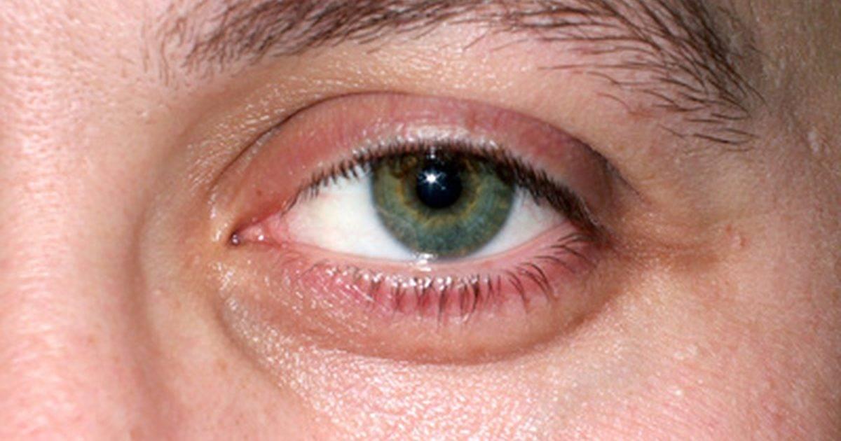 утром после сна красные глаза