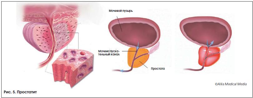 Лечение уретрита и цистита у мужчин | советы доктора