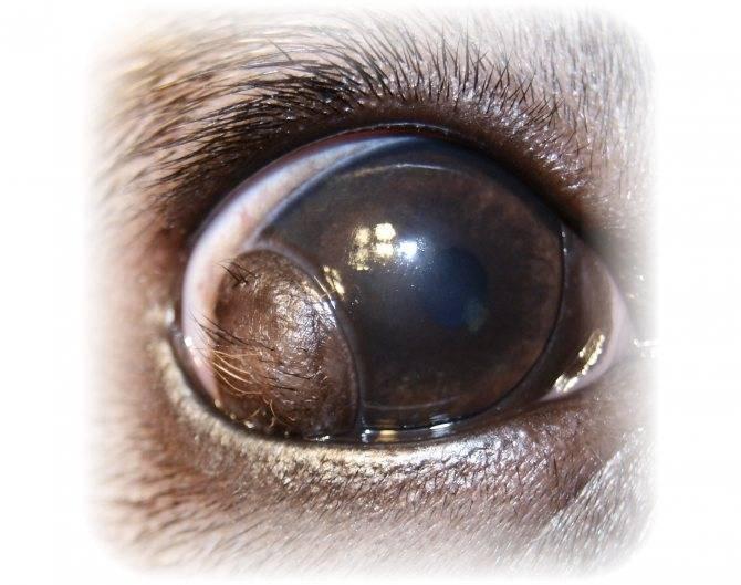 Киста глаза - причины, симптомы, методы лечения, удаление