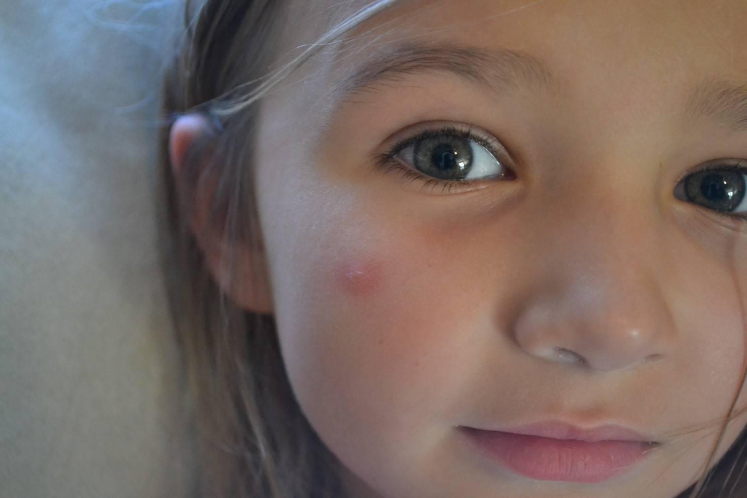 В глаз укусила мошка - что делать? ребенка укусила мошка в глаз, опух глаз - что делать?