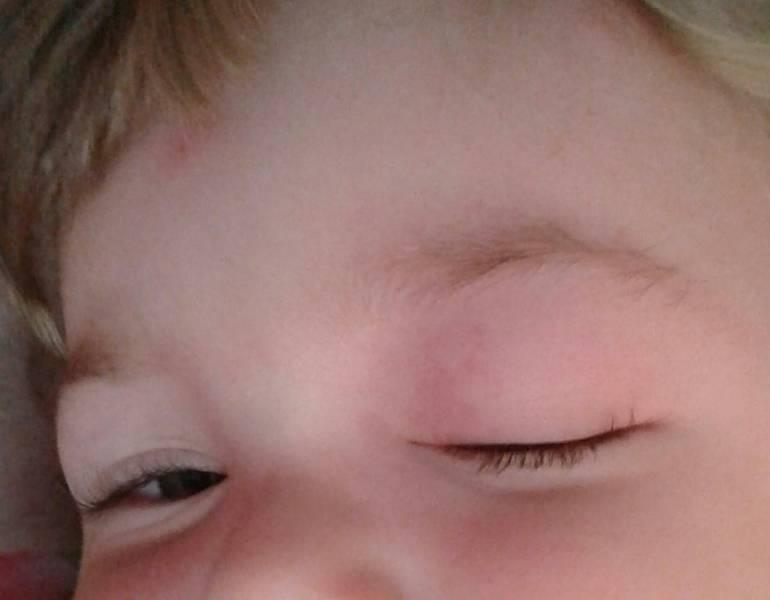 Укусил комар опухло под глазом что делать