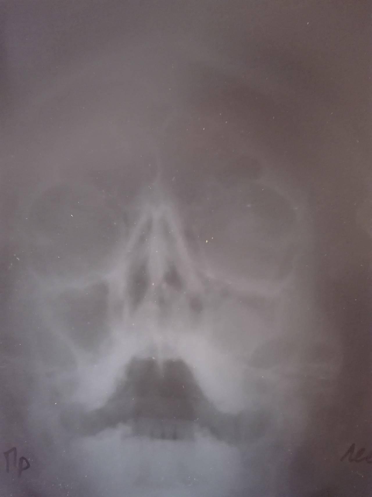 Виды операций по удалению кисты из гайморовой пазухи
