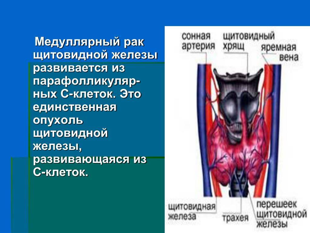 Рак щитовидной железы –  симптомы у женщин (папиллярный, медуллярный, фолликулярный рак)