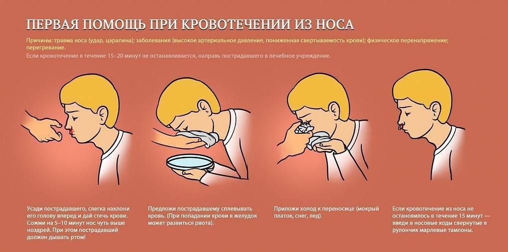 что надо сделать чтобы пошла кровь из носа
