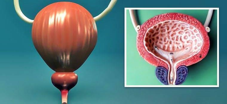 Шеейчный цистит: особенности заболевания, симптомы, способы терапии и профилактика