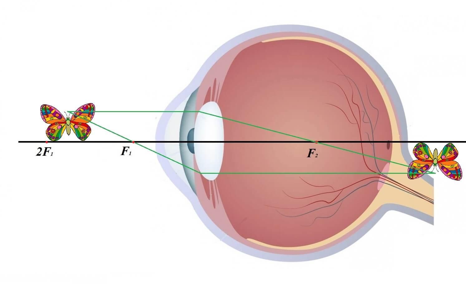 Пресбиопия: обоих глаз, лечение, упражнения глаз — полная информация — симптомы
