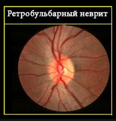 неврит зрительного нерва лечение