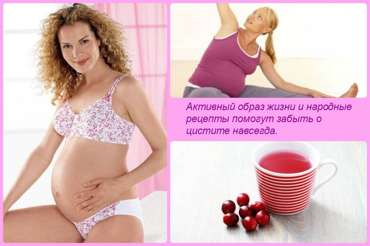 Цистит при беременности на ранних сроках: лечение, симптомы, последствия