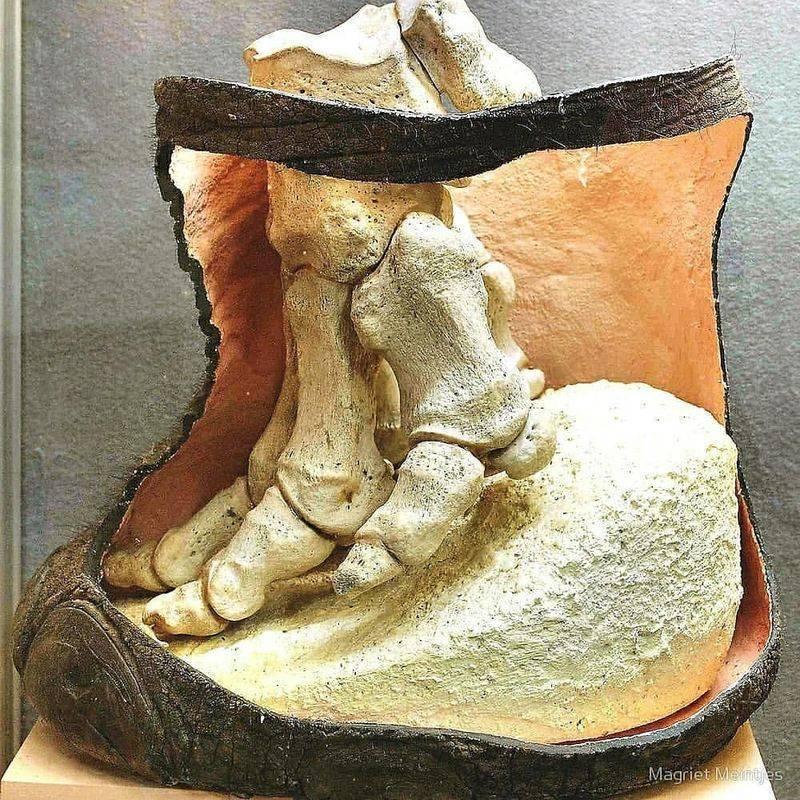 Диагностика слоновости ног - причины, лечение и профилактика лимфостаза