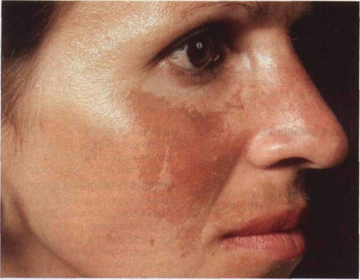 Кожные покровы при циррозе печени: внешние признаки заболевания на коже
