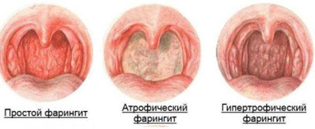 пузырьки в горле