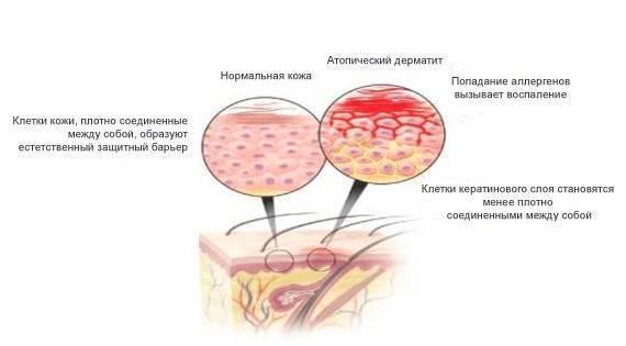 Народные средства от аллергического дерматита