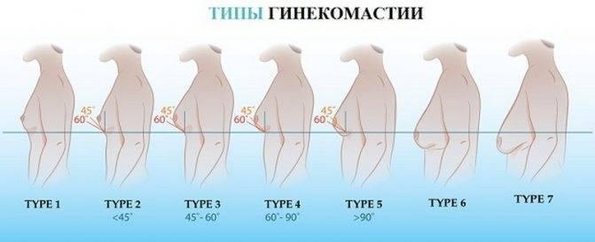 Гинекомастия у мужчин: мкб, причины, признаки и лечение