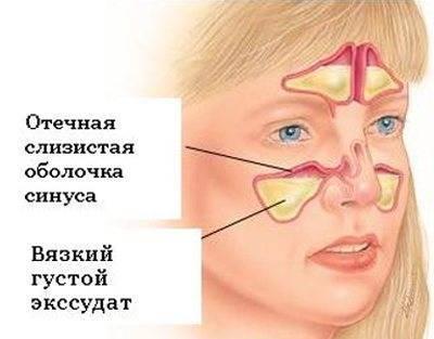 Формы, симптомы и лечение экссудативного гайморита (синусита)