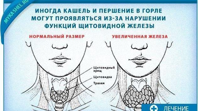 Першит в горле. причины, диагностика, лечение причин, народные методы лечения :: polismed.com