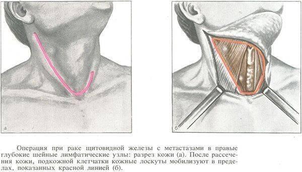 Диета после операции по удалению щитовидной железы