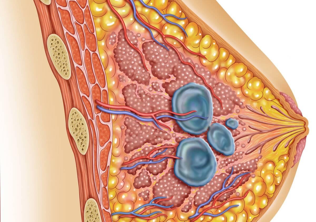 Фиброаденома молочной железы лечение народными средствами отзывы