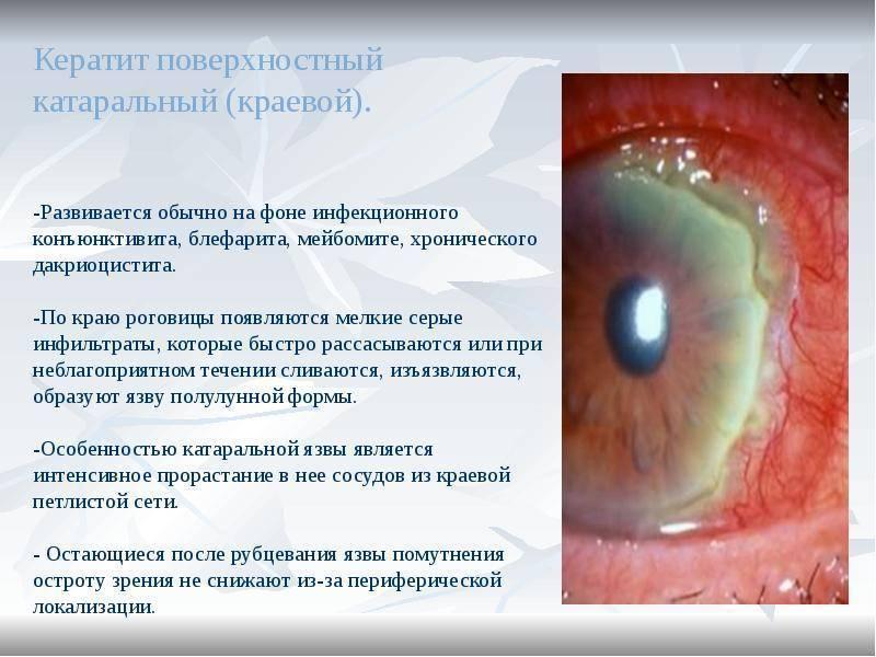 как лечить кератит глаза в домашних условиях