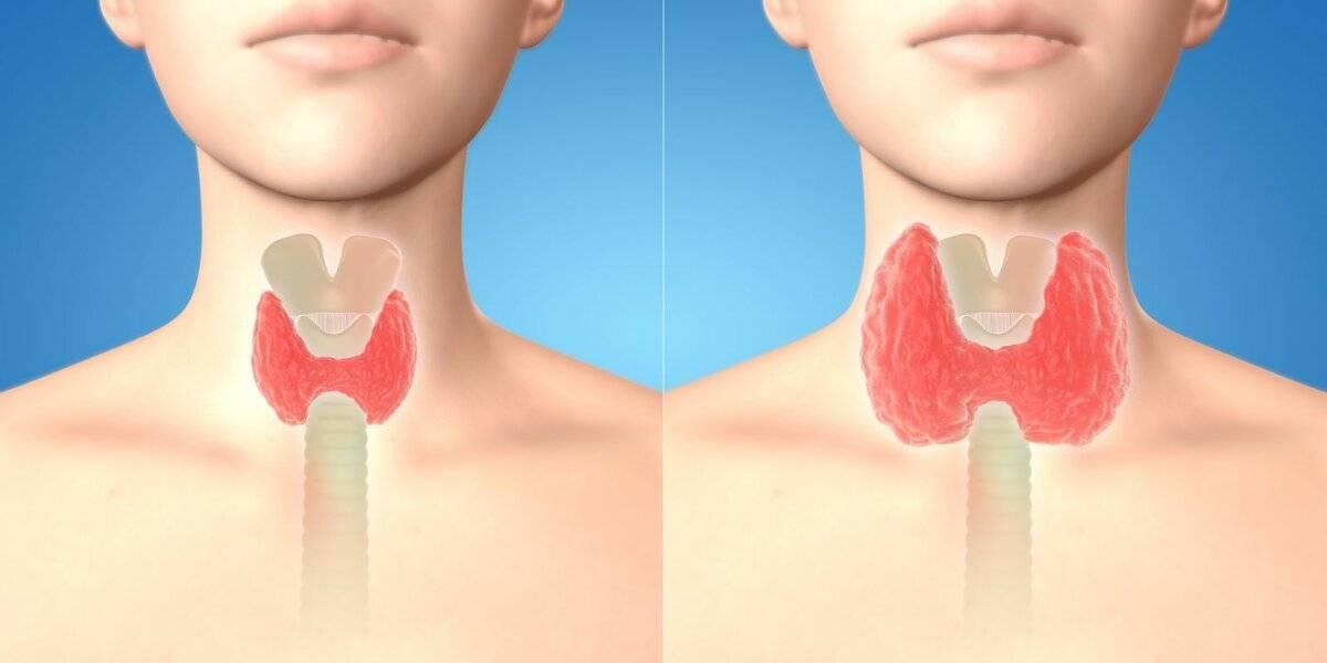 Гиперплазия щитовидной железы, диффузная и узловая гиперплазия