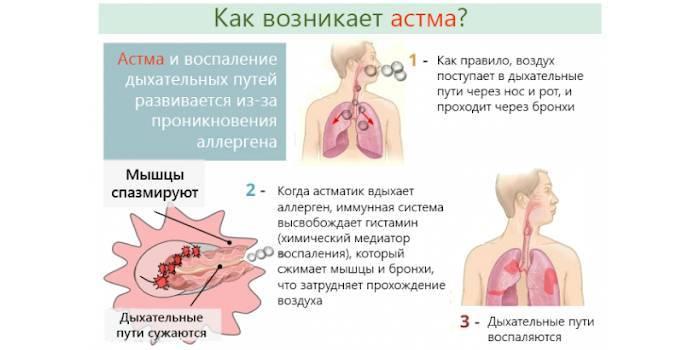 Бронхиальная астма и дерматит