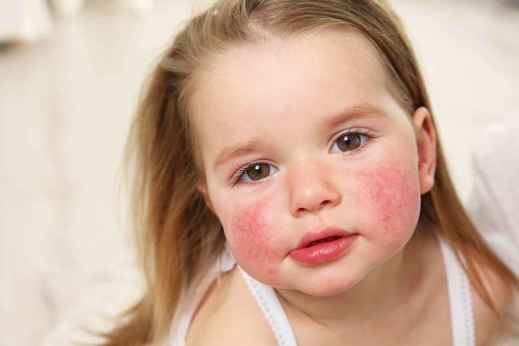 Тактика лечения себорейного дерматита на лице