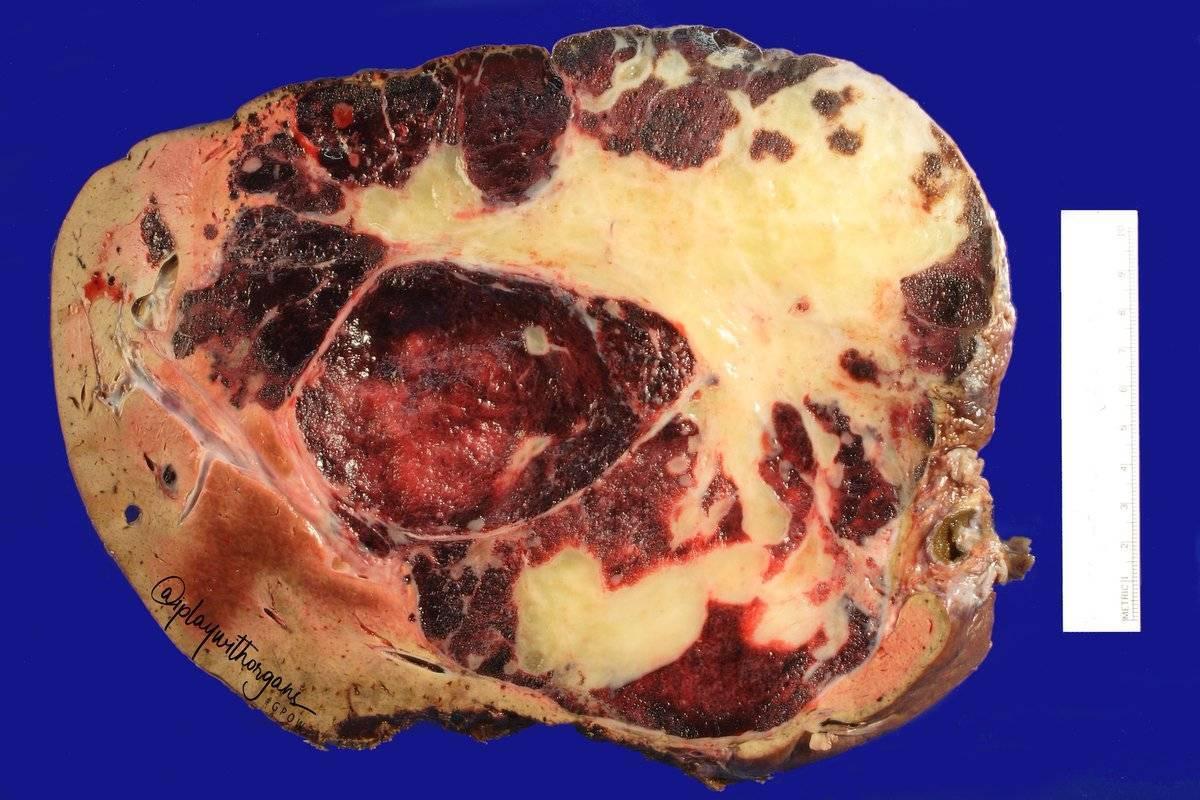 Гемангиома печени: причины заболевания, основные симптомы, лечение и профилактика