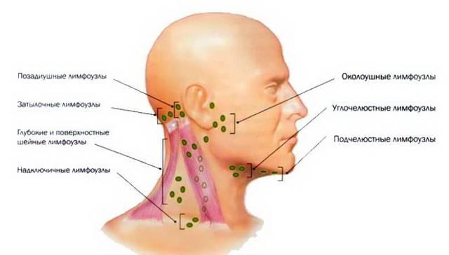 воспаление лимфоузла за ухом как лечить