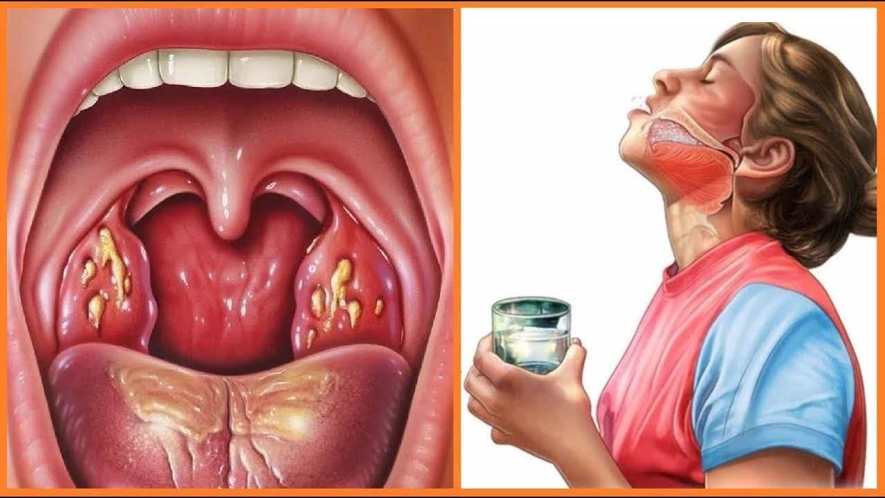 болит горло гланды удалены