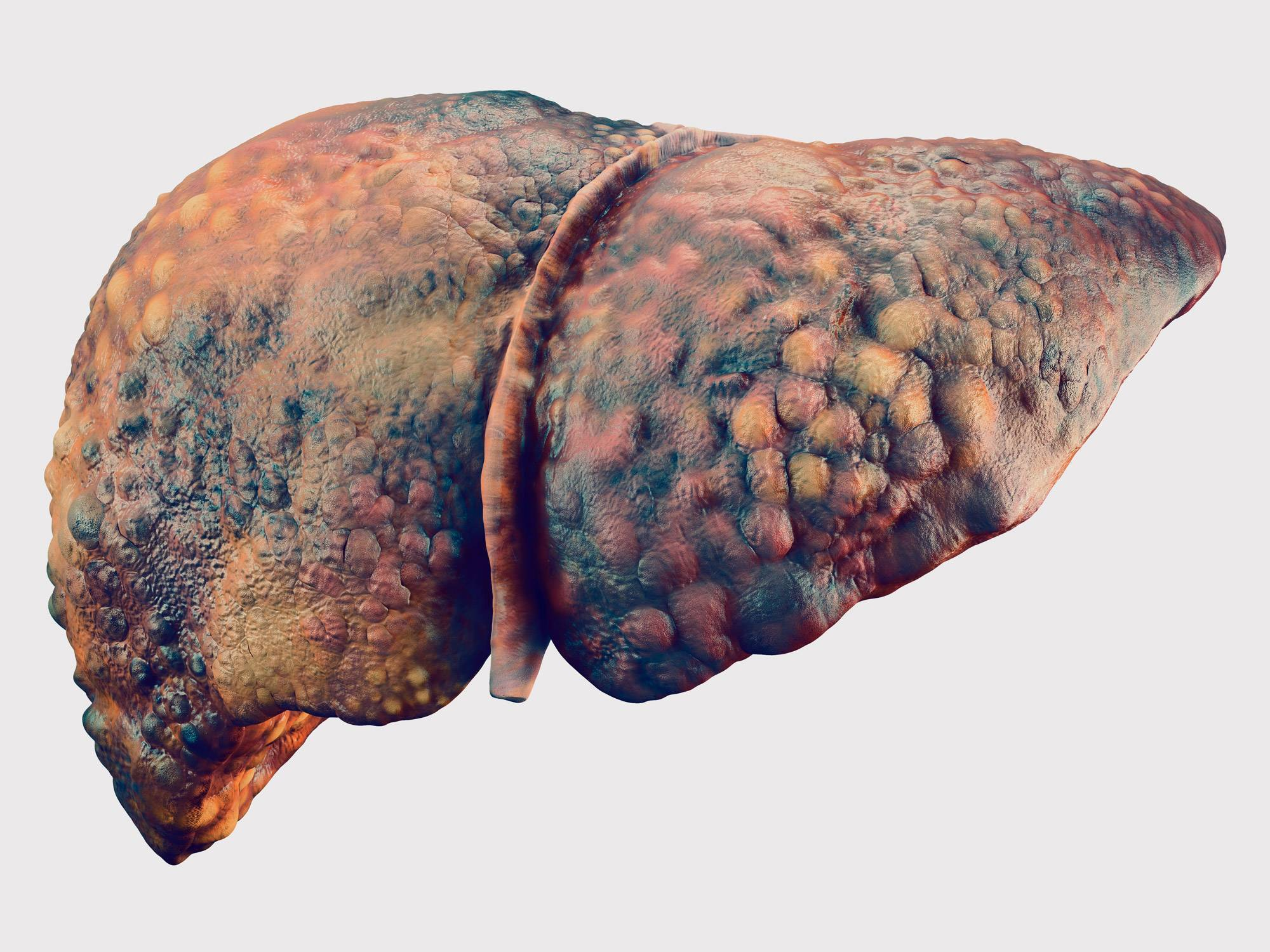 Печень при гепатите с болит