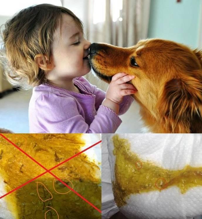 Признаки, симптомы и лечение глистов у детей