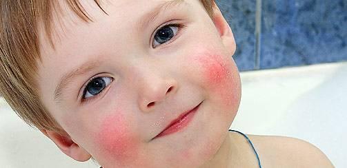 Контактный дерматит у ребенка. фото симптомы на лице, теле. лечение