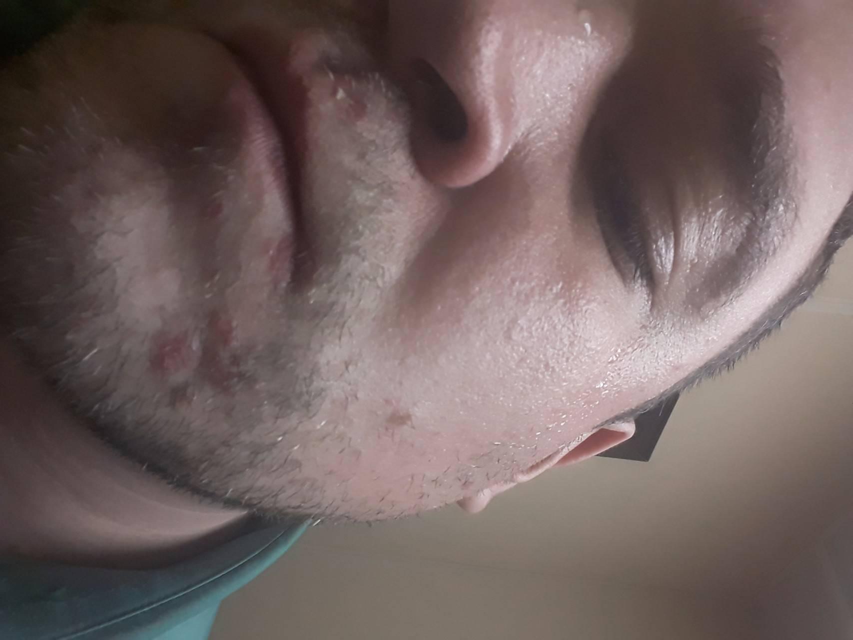 герпес лица