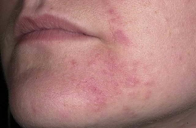 дерматит лица лечение